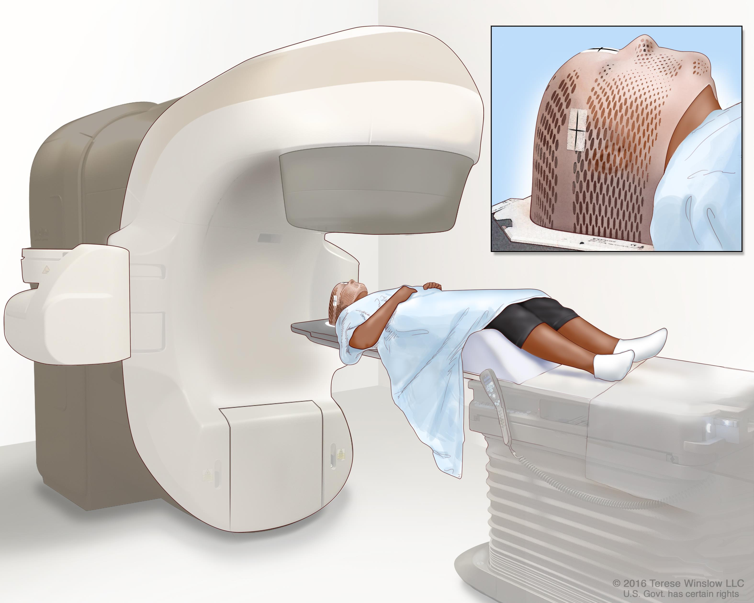 External-beam radiation therapy of the brain; drawing shows a patient lying on a table under a machine that is used to aim high-energy radiation. An inset shows a mesh mask that helps keep the patient's head from moving during treatment. The mask has pieces of white tape with small ink marks on it. The ink marks are used to line up the radiation machine in the same position before each treatment.