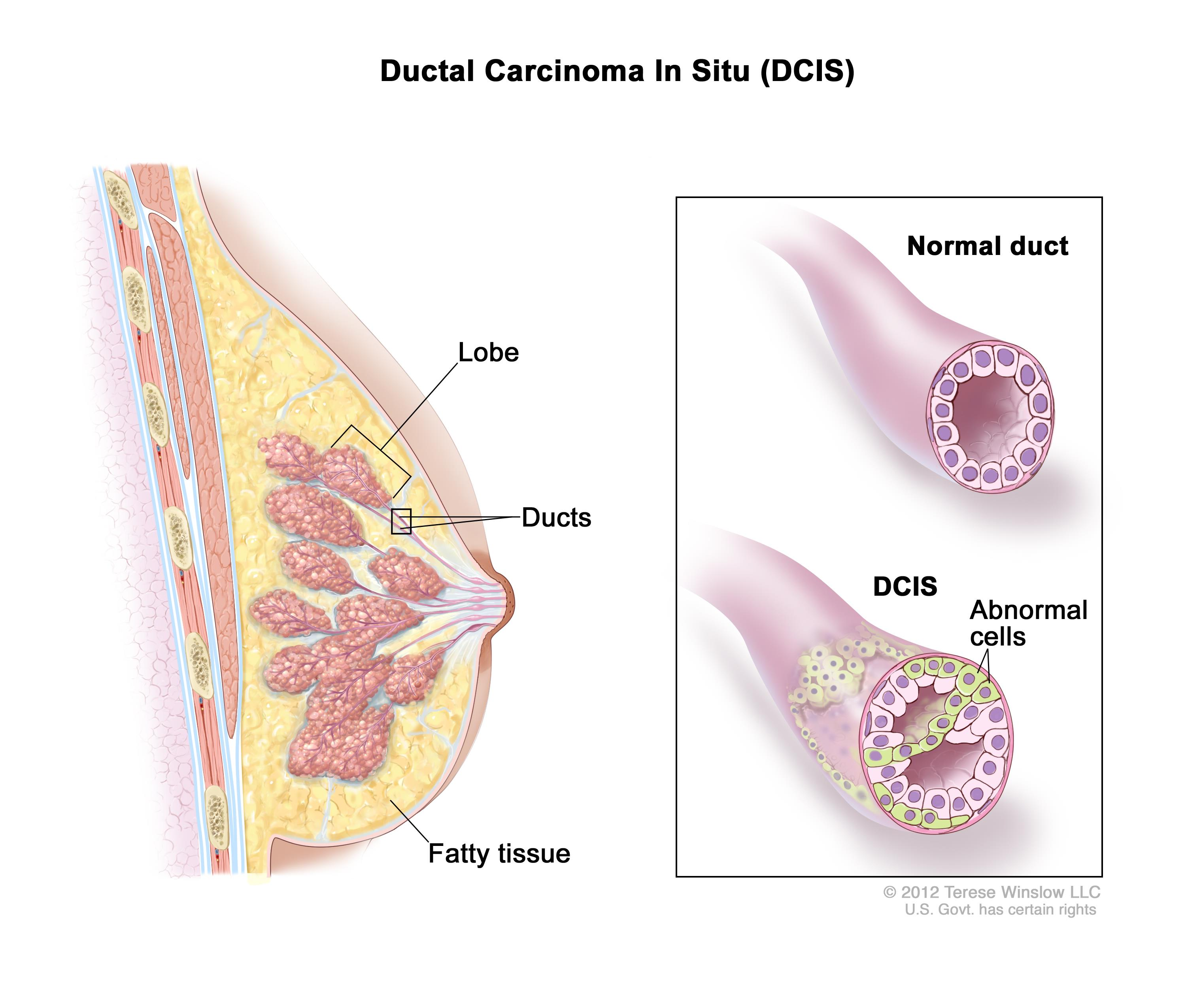 Ductal carcinoma in situ (DCIS); drawing shows  a lobe, ducts, and fatty tissue in a cross section of the breast. The inset shows a normal duct and a duct with abnormal cells.