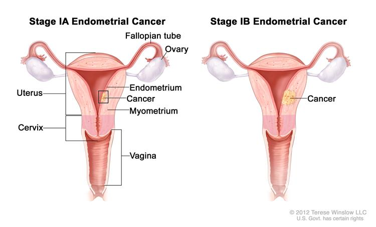 Endometrial Cancer Treatment PDQ Patient Version National