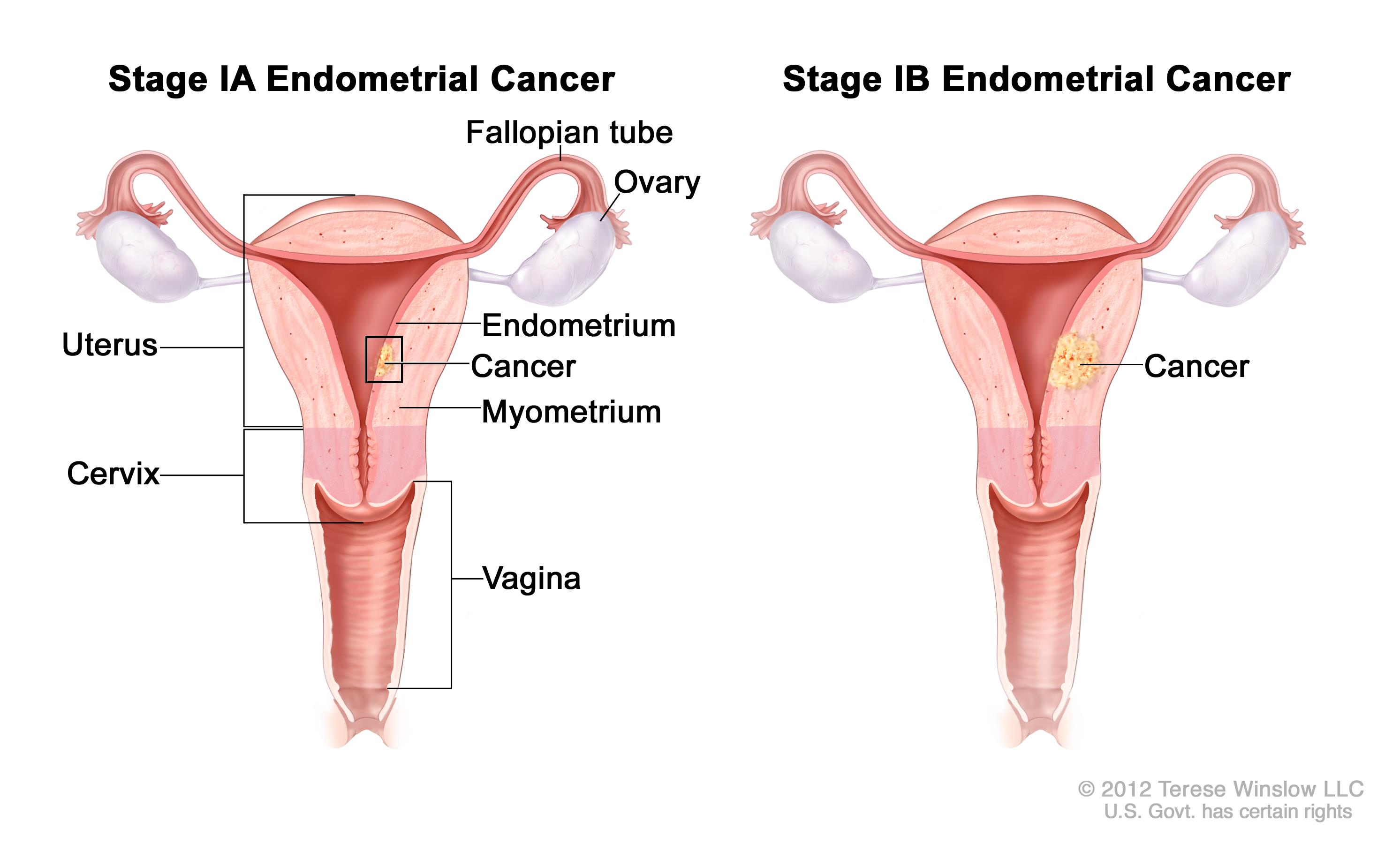 Stage iv endometriosis symptoms - Enlarge