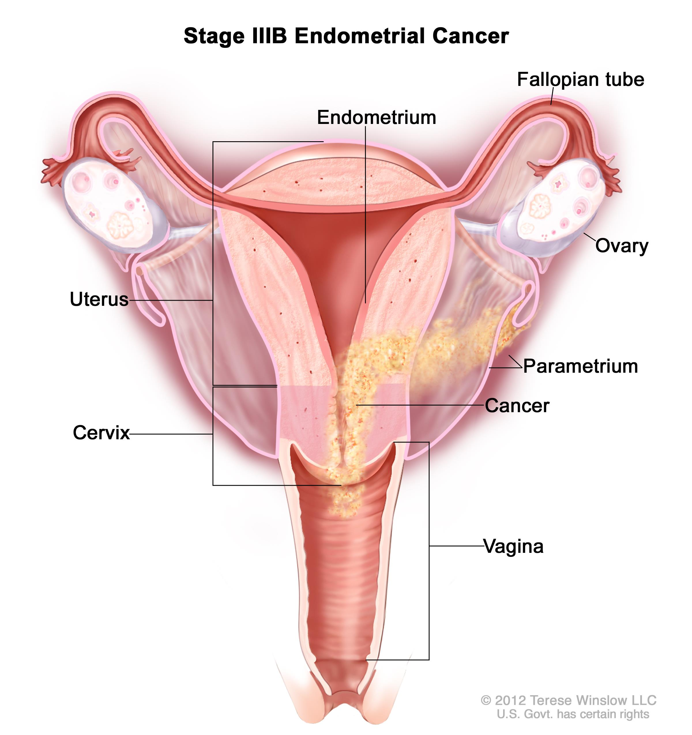 Stage IIIB endometrial cancer shown in a cross-section drawing of the uterus, cervix, fallopian tubes, ovaries, and vagina.  Cancer is shown in the endometrium of the uterus, the parametrium, the cervix, and the vagina.
