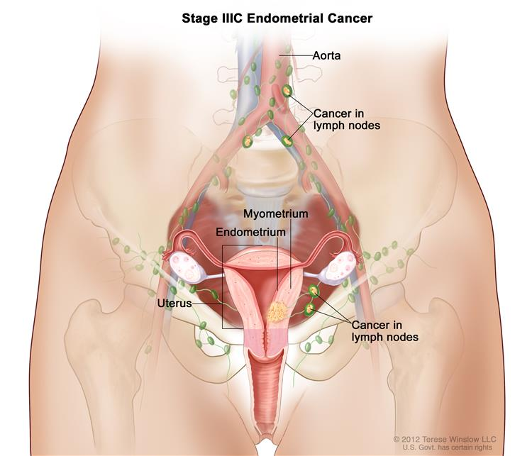 Endometrial Cancer Hoa Hematology Oncology Associates Of Cny