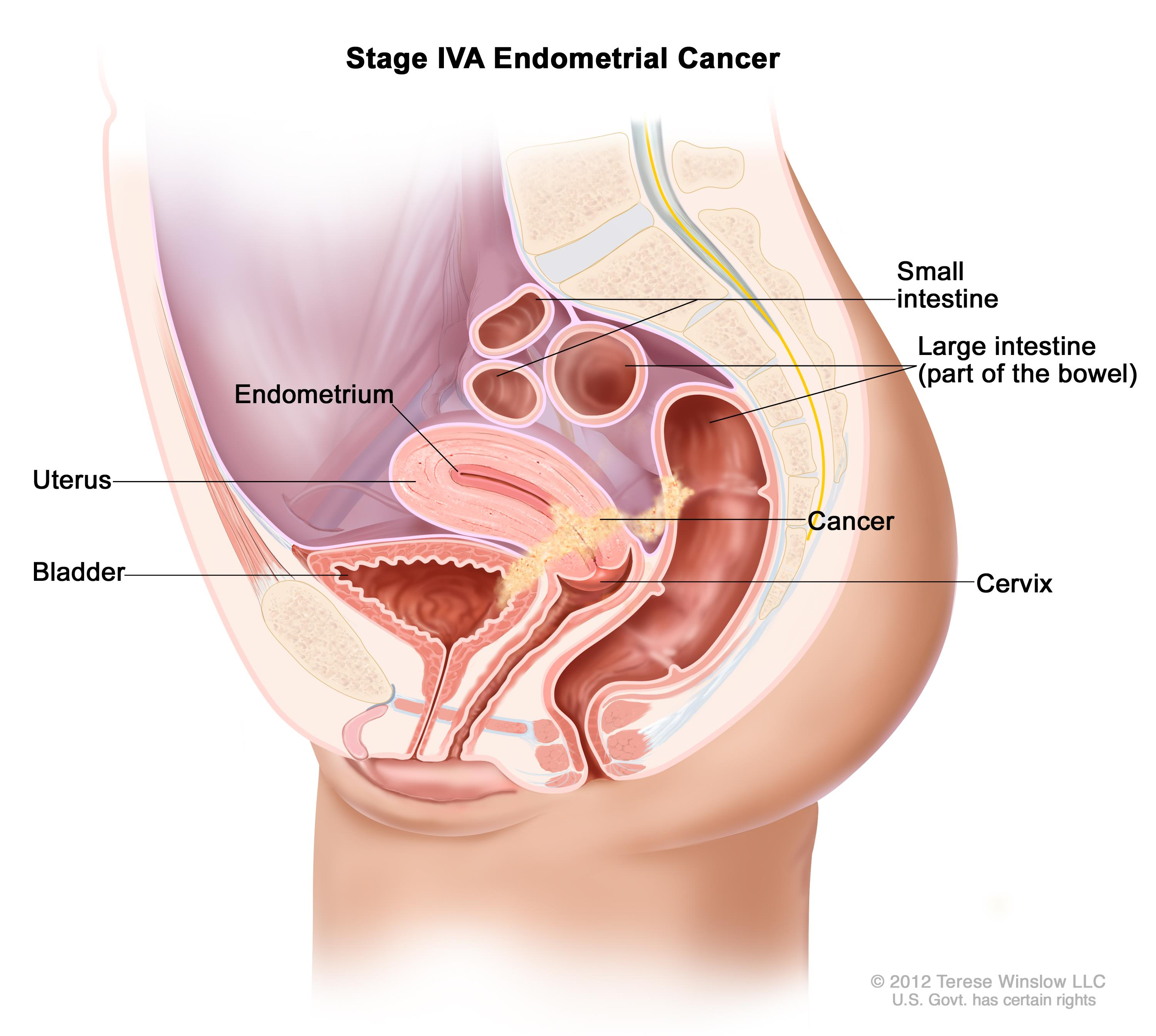 Stage IVA endometrial cancer shown in a side-view cross-section drawing of the uterus, bladder, cervix, vagina, small intestine, and large intestine. Cancer is shown in the bladder, uterus, and bowel.