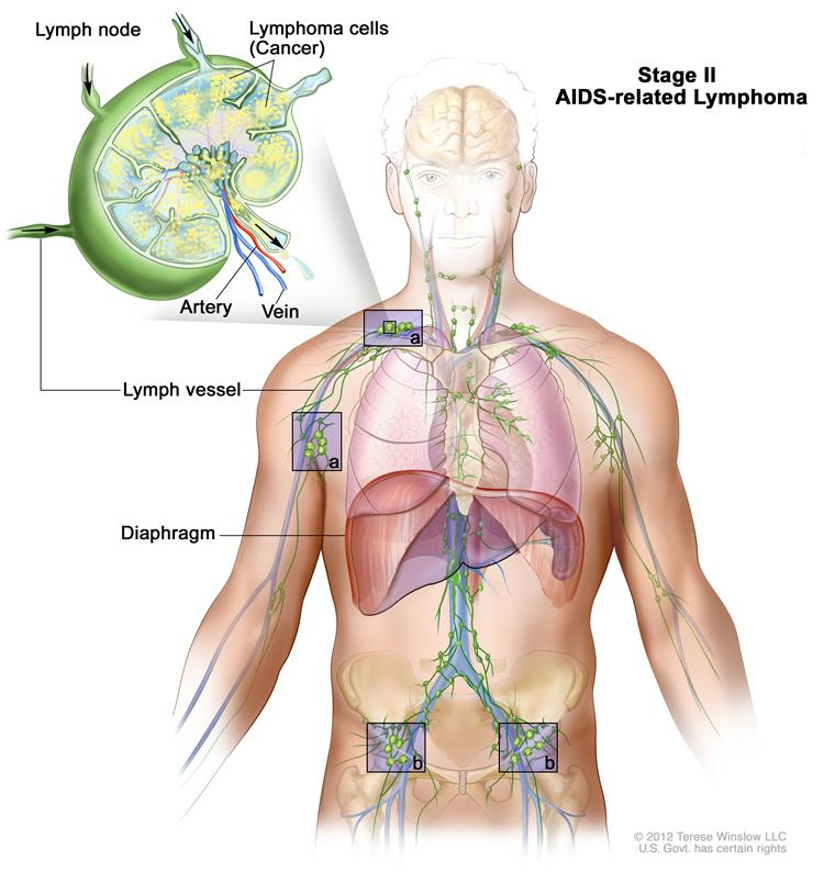 Stage II AIDS-related lymphoma; drawing shows cancer in lymph node groups above and below the diaphragm. An inset shows a lymph node with a lymph vessel, an artery, and a vein. Lymphoma cells containing cancer are shown in the lymph node.