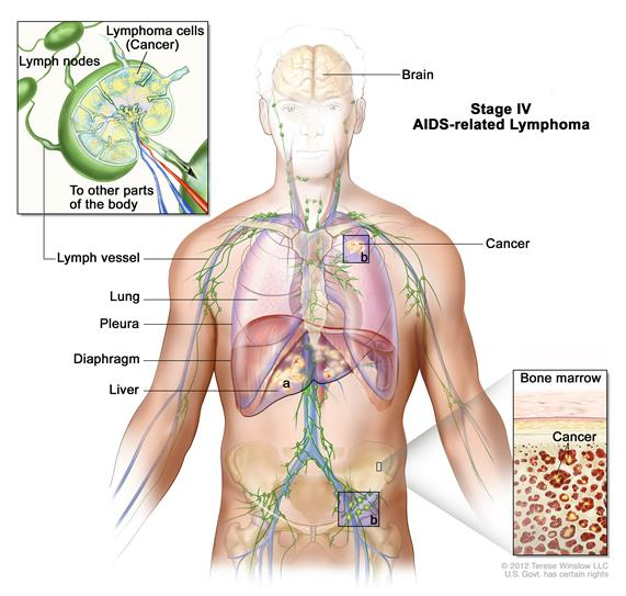 Stage IV AIDS-related lymphoma; drawing shows cancer in the liver, the left lung, and in one lymph node group below the diaphragm. The brain and pleura are also shown. One inset shows a close-up of cancer spreading through lymph nodes and lymph vessels to other parts of the body. Lymphoma cells containing cancer are shown inside one lymph node. Another inset shows cancer cells in the bone marrow.