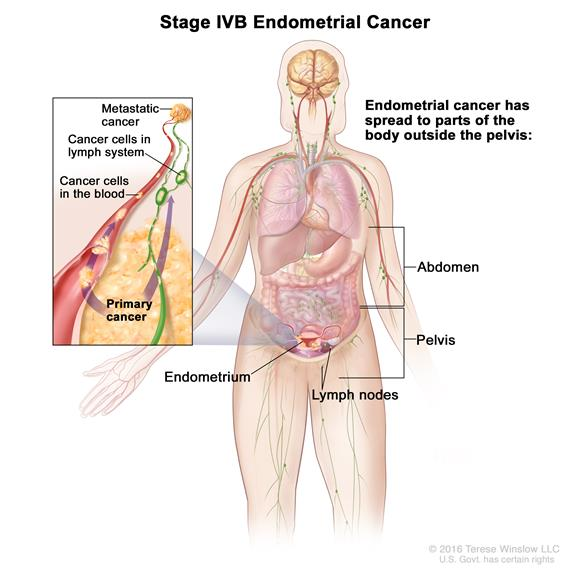Stage IVB endometrial cancer; drawing shows cancer has spread beyond the pelvis to lymph nodes in the abdomen. Inset shows cancer spreading through the blood and lymph nodes to other parts of the body.
