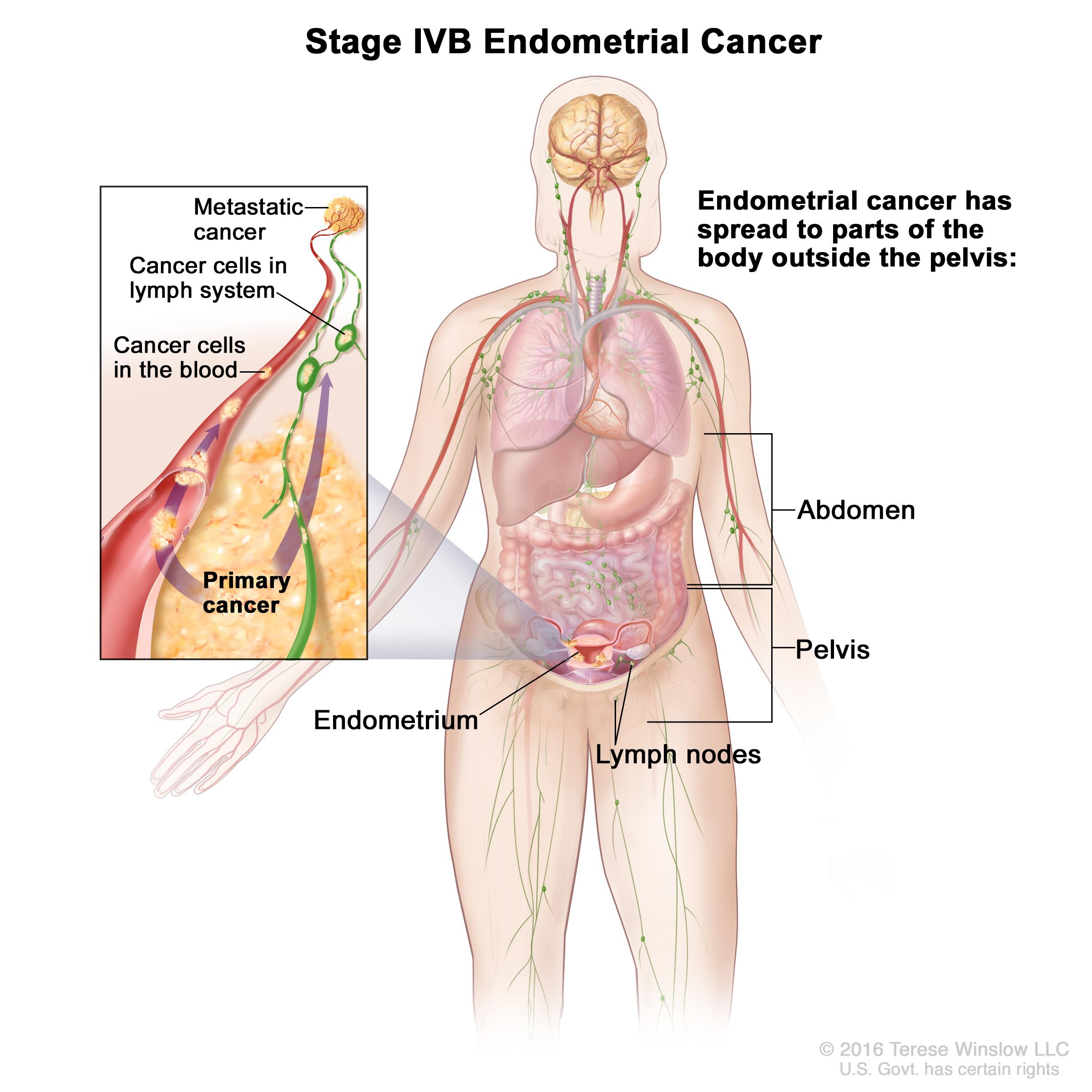 Stage iv endometriosis symptoms - Enlarge Stage Ivb Endometrial