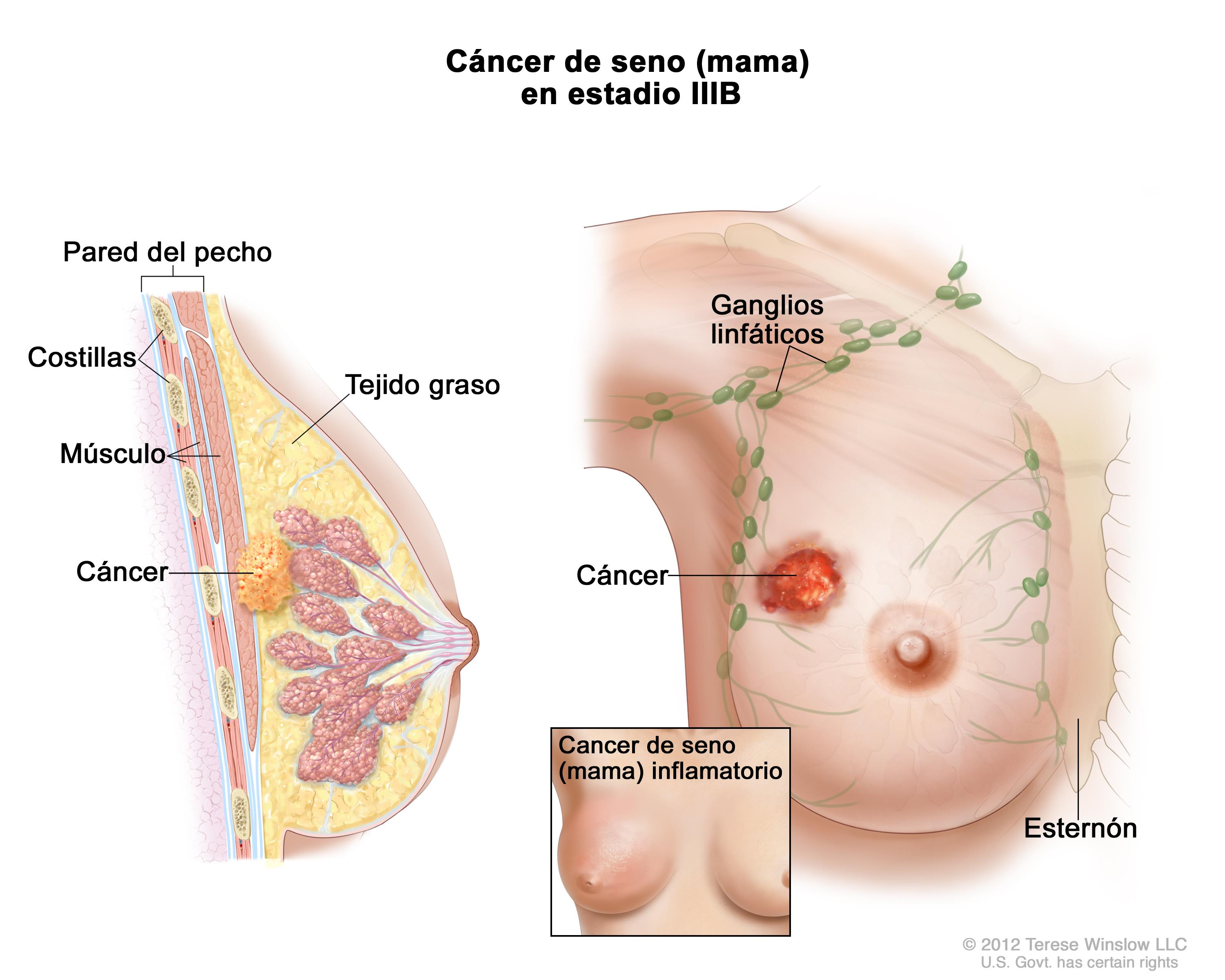 superior aspect of the left breast