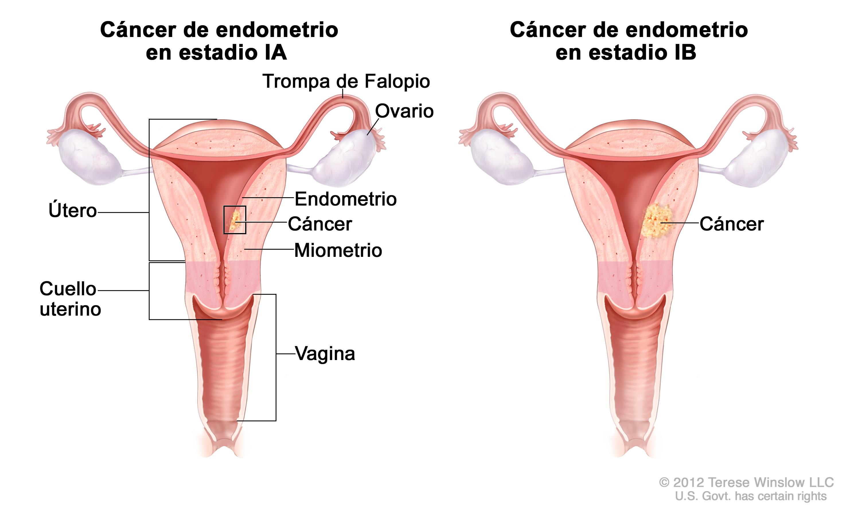 Tratamiento Del Cancer De Endometrio Pdq Version Para Pacientes