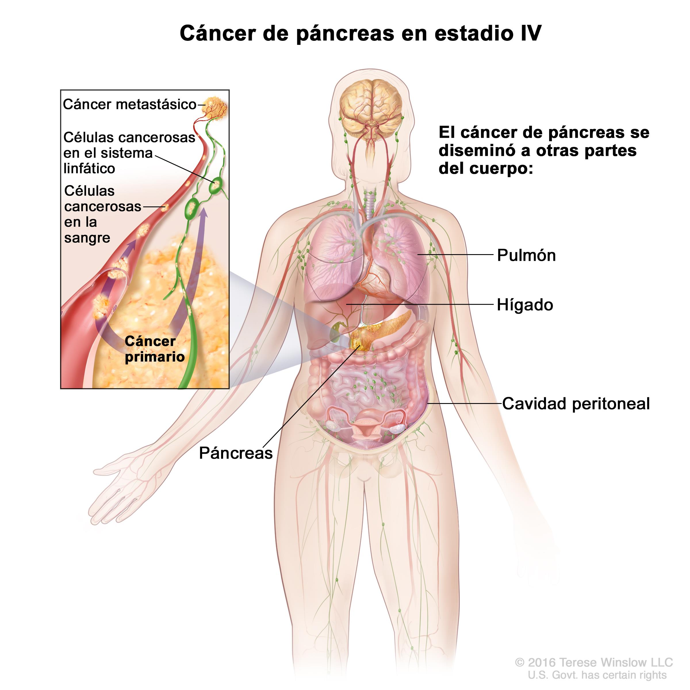 diabetes tipo 1 del cáncer de páncreas