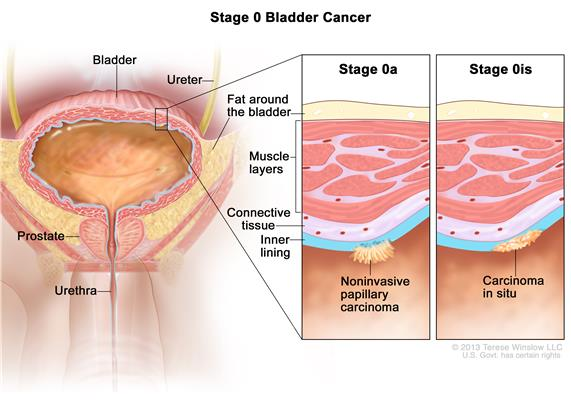 Stage 0 bladder cancer; drawing shows the bladder, ureter, prostate, and urethra. First inset shows papillary carcinoma on the inner lining of the bladder. Second inset shows carcinoma in situ on the inner lining of the bladder. Also shown are the layers of connective tissue and muscle tissue of the bladder and the layer of fat around the bladder.