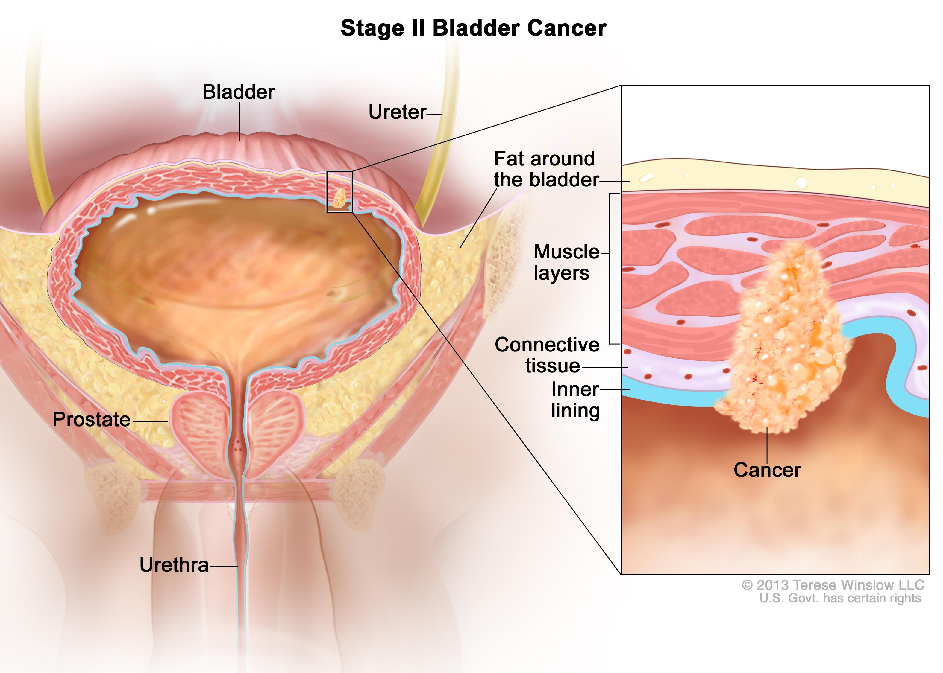 Bladder Cancer Treatment (PDQ®) (Patients) | OncoLink