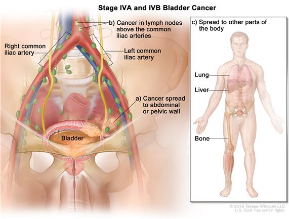 Stage IVA and IVB bladder cancer; drawing shows cancer that has spread from the bladder to (a) the abdominal or pelvic wall and (b) lymph nodes above the  common iliac arteries. Also shown is cancer that has spread to (c) other parts of the body, including the lung, liver, and bone.