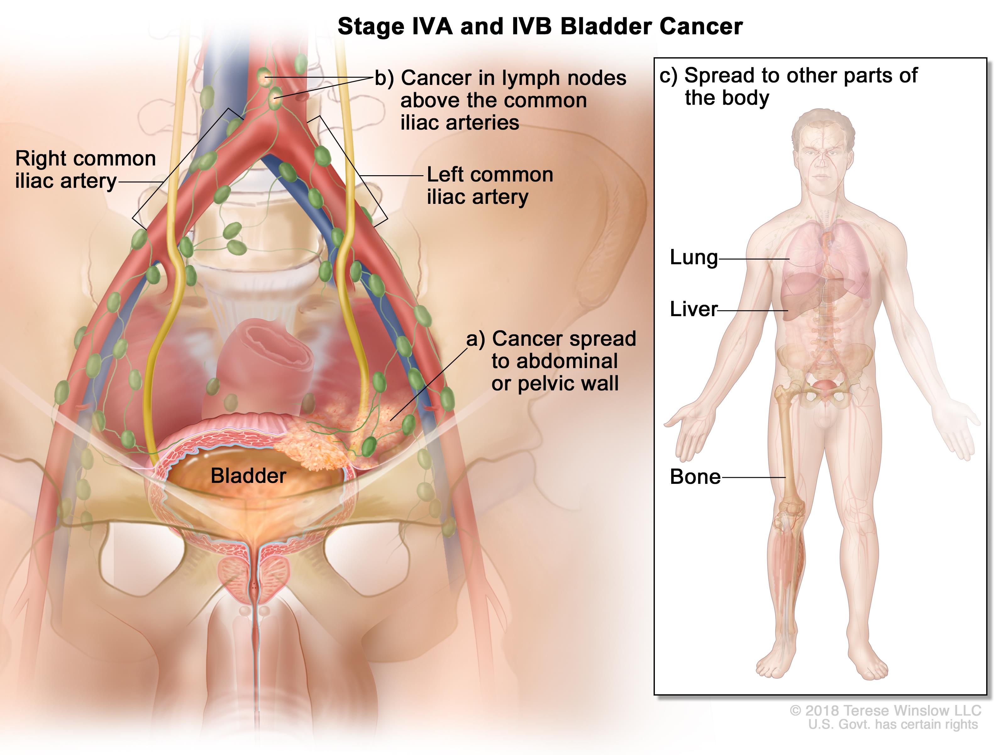 development of bladder cancer