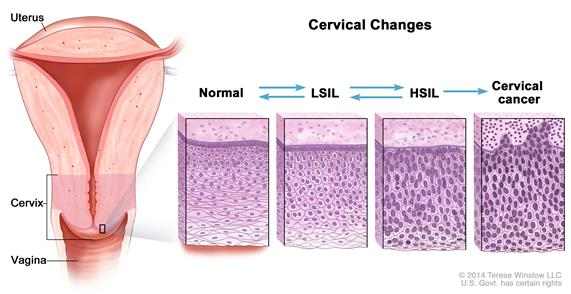 Cervical changes; drawing shows a cross-section of the uterus, cervix, and vagina. Also shown are four panels showing cell changes inside the cervix. The first panel shows normal cells. The second and third panels show abnormal cells called LSIL and HSIL. The fourth panel shows cervical cancer cells. Arrows are used between the panels to show that normal cells may become LSIL or HSIL, which may or may not become cancer.