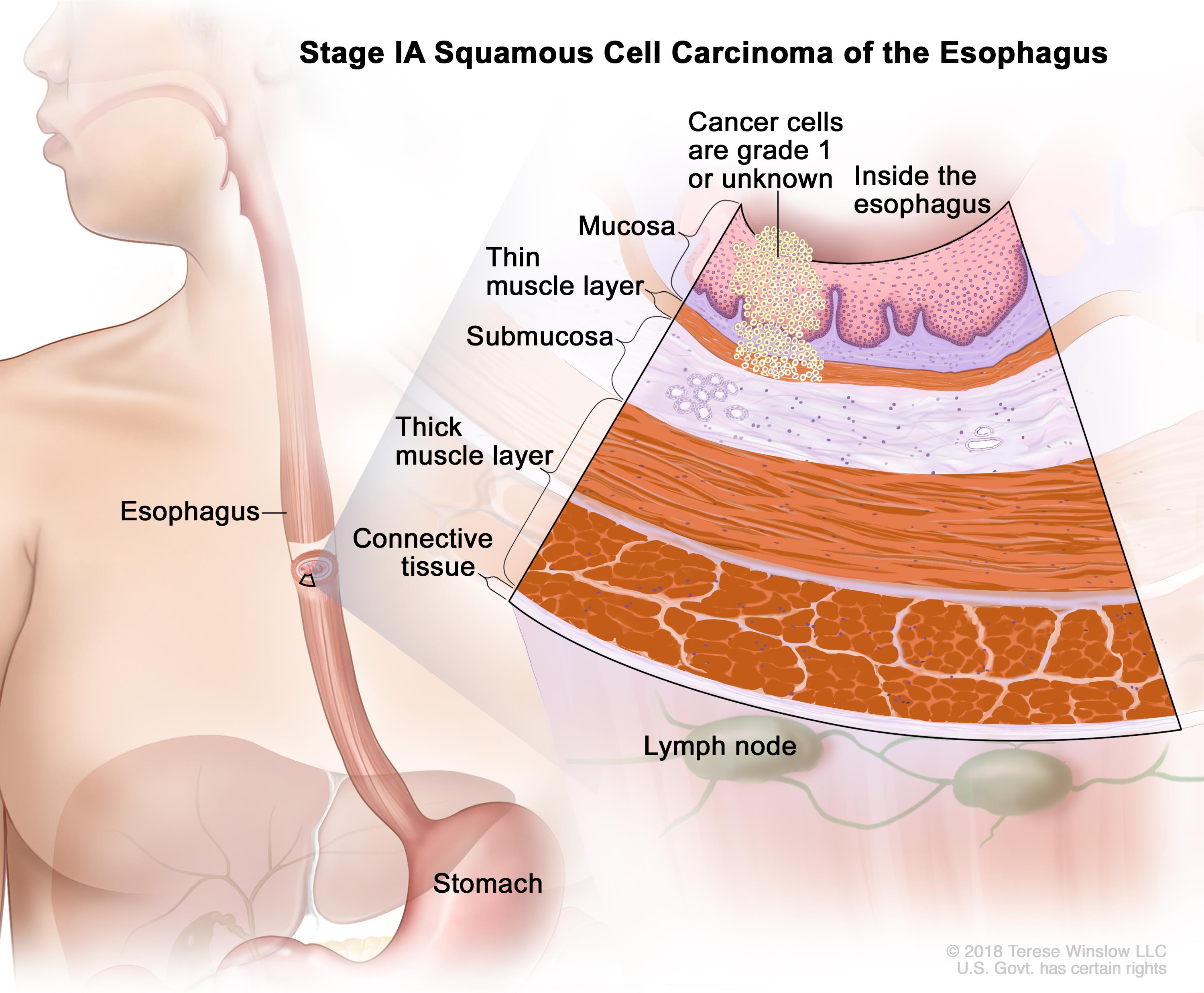 foto Managing Esophageal Cancer Pain