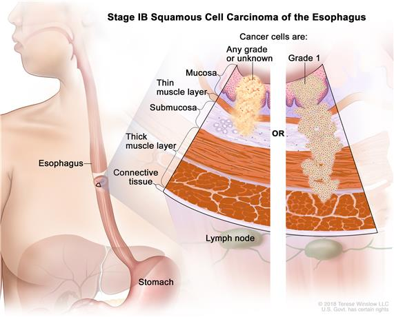 Stage IB squamous cell cancer of the esophagus; drawing shows the  esophagus and stomach. A two-panel inset shows the layers of the esophagus wall: the mucosa, submucosa, muscle, and connective tissue layers. Also shown are lymph nodes. The left panel shows cancer in the mucosa and submucosa layers. The right panel shows cancer in the mucosa, submucosa, and muscle layers.