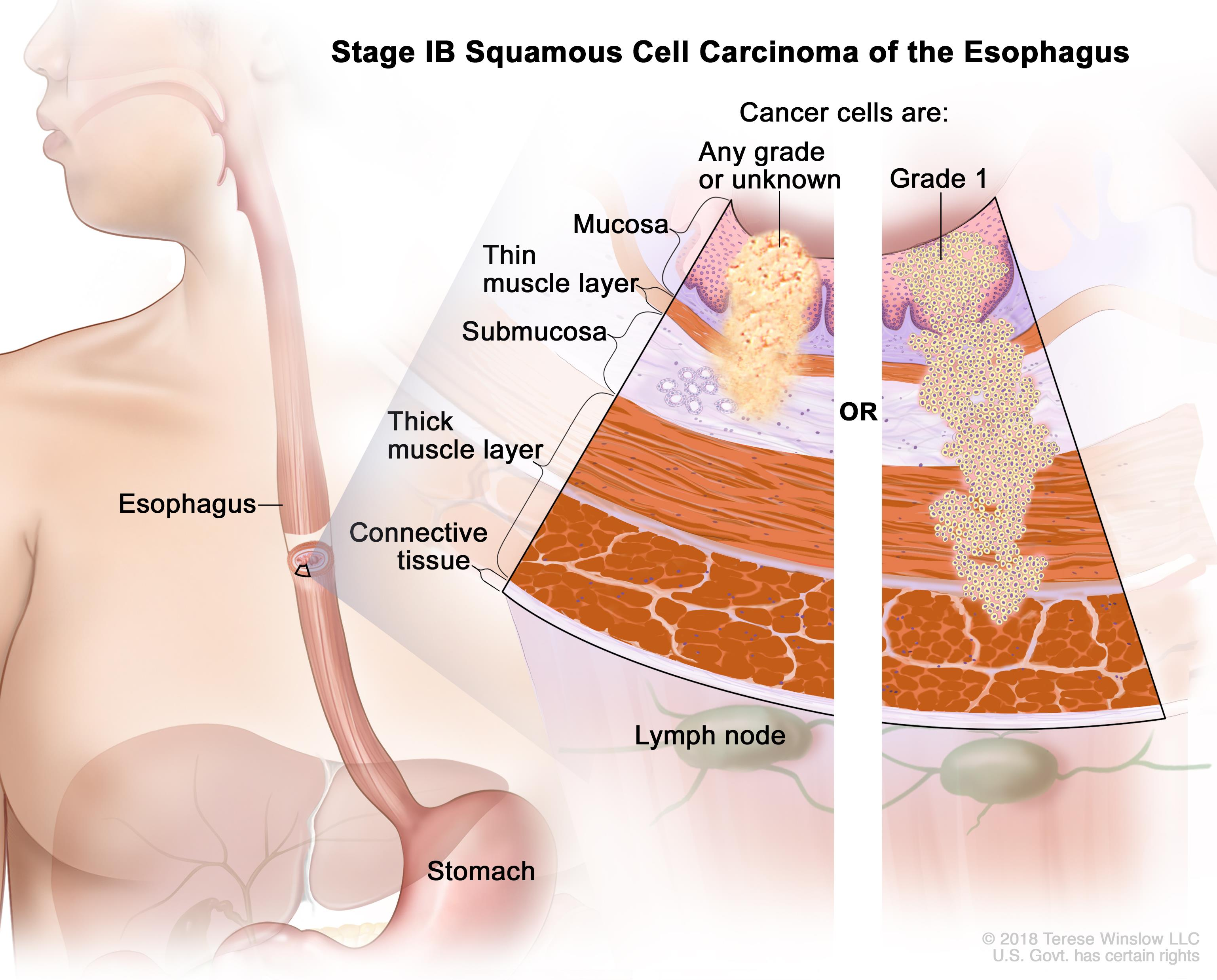 Esophageal Cancer Treatment (PDQ®)—Patient Version - National Cancer ...
