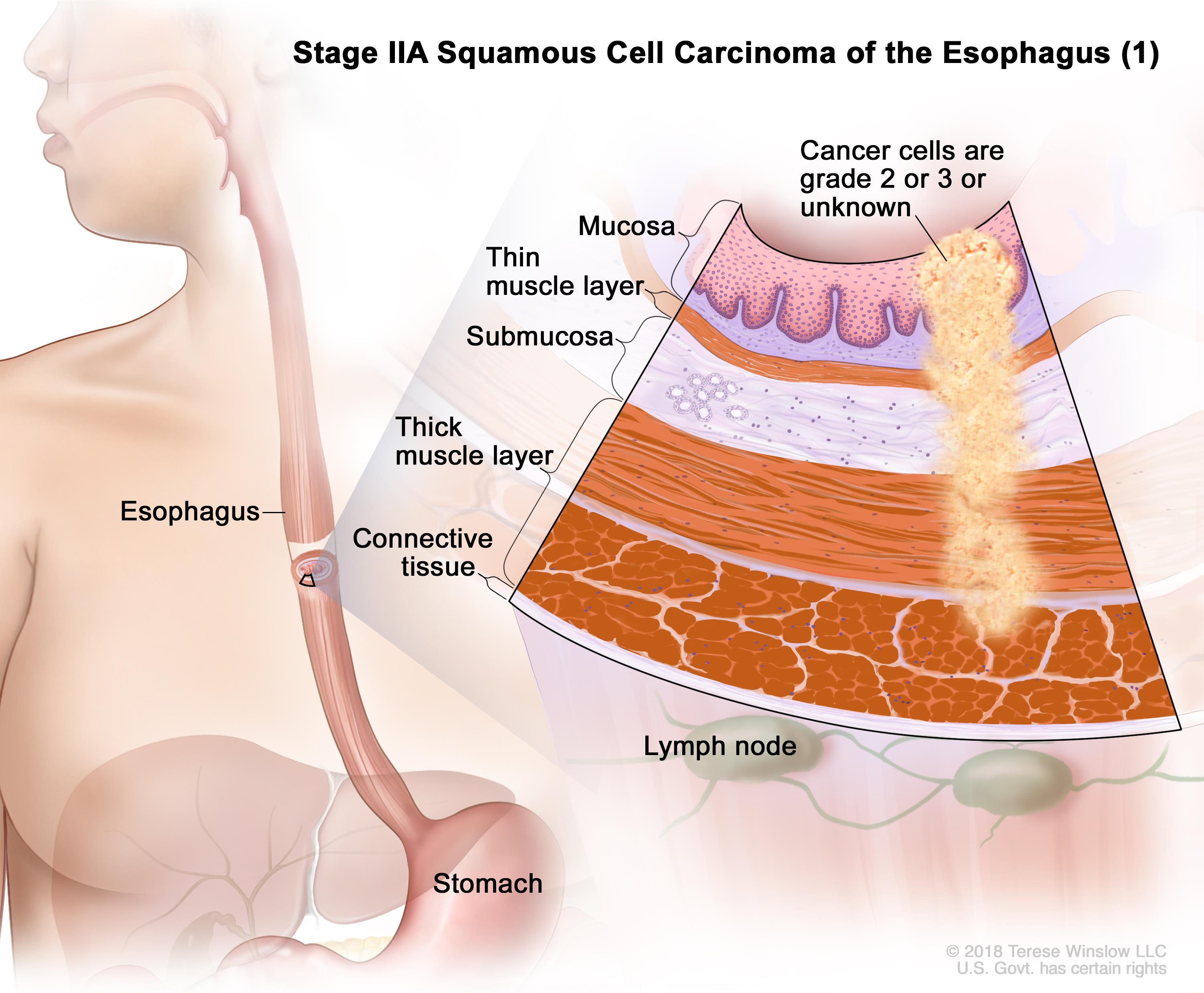 Stage IIA squamous cell cancer of the esophagus (1); drawing shows the esophagus and stomach. An inset shows the layers of the esophagus wall with cancer in the mucosa, submucosa, muscle, and connective tissue layers. Also shown are lymph nodes.