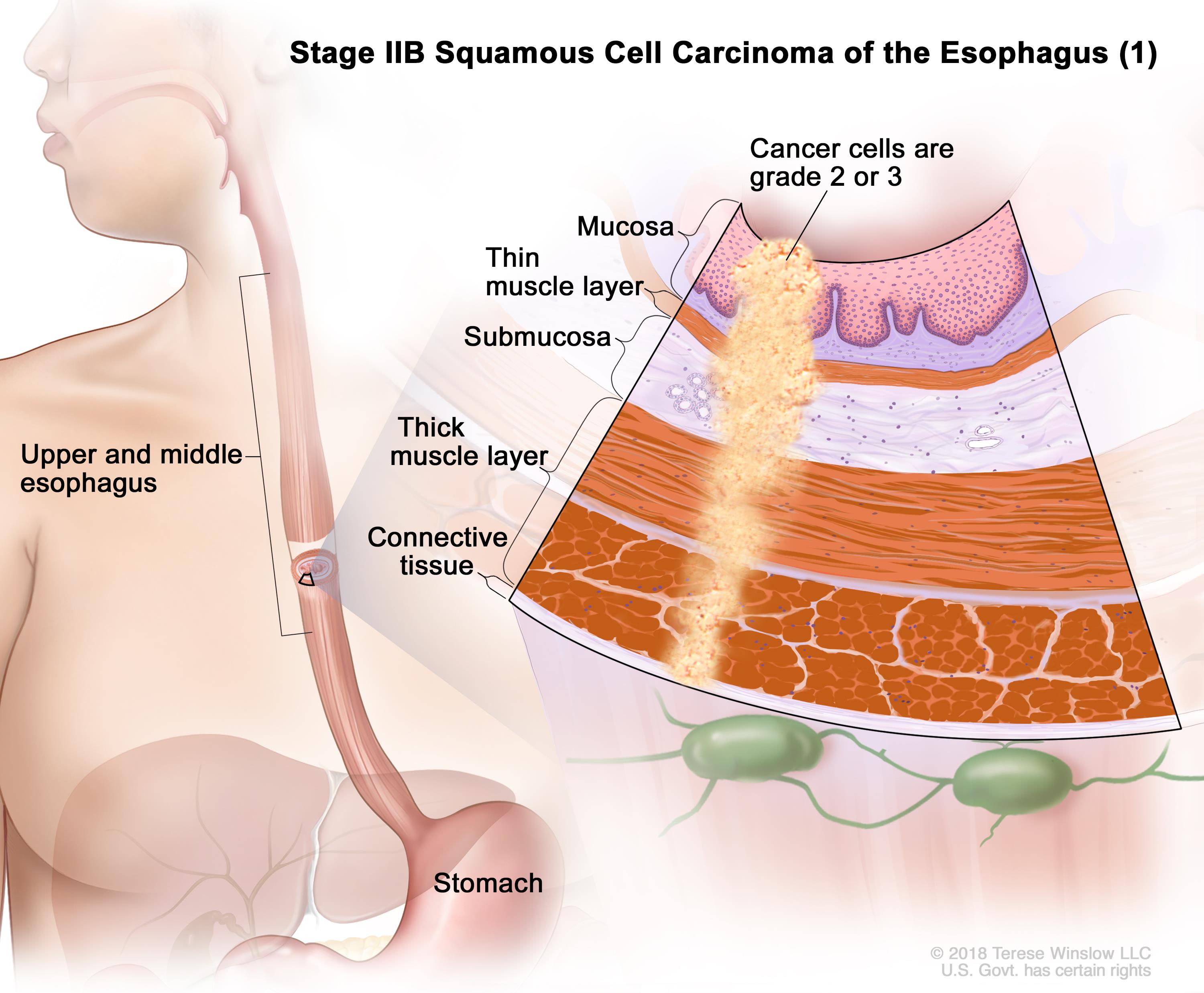 Stage IIB squamous cell cancer of the esophagus; drawing shows the esophagus and stomach. A two-panel inset shows the layers of the esophagus wall: the mucosa, submucosa, muscle, and connective tissue layers. The left panel shows cancer in the mucosa, submucosa, muscle, and connective tissue layers. The right panel shows cancer in the mucosa, submucosa, and muscle layers and in 1 lymph node.