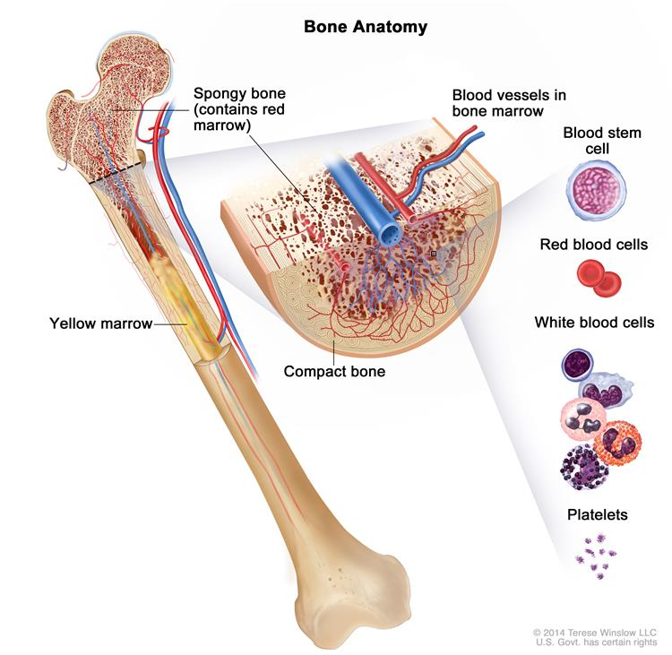 a description of leukemia as a malignant disease of the bone marrow and blood Hematology of leukemia leukemia is a disease of the white blood cells a leukemia patient has an elevated white blood cell count consisting largely of immature.