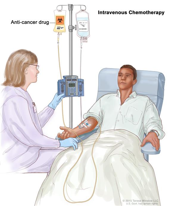 Intravenous (IV) chemotherapy; drawing of an anti-cancer drug being given to a patient through a vein in the arm.