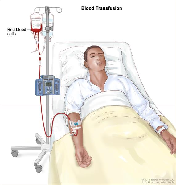 Blood transfusion; drawing of red blood cells being given to a patient through an intravenous (IV) catheter in the arm.