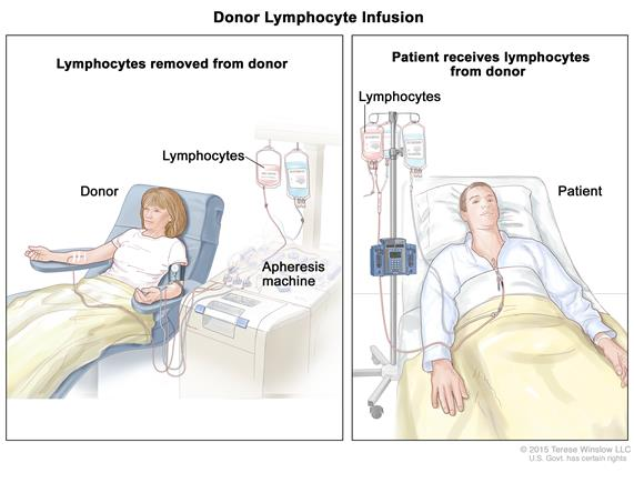 Donor lymphocyte infusion; (Panel 1): Drawing of lymphocytes being removed from a donor. Blood is taken from a vein in the donor's arm and flows through an apheresis machine that removes the lymphocytes. The blood is then returned to the donor through a vein in the other arm. (Panel 2): Drawing of lymphocytes being given to a patient through a catheter in the chest.