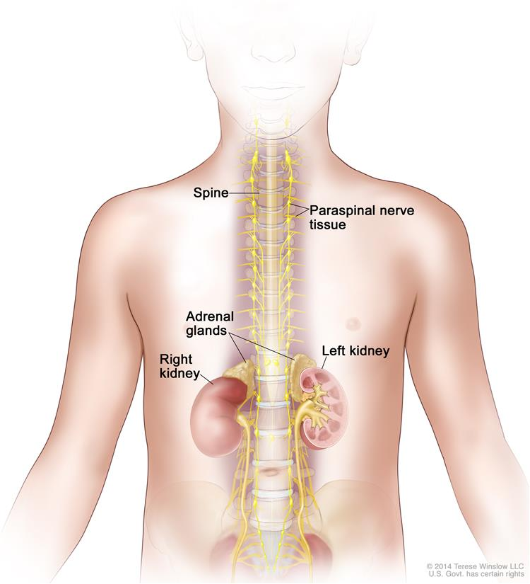 Drawing shows parts of the body where neuroblastoma may be found, including the paraspinal nerve tissue and the adrenal glands. Also shown are the spine and right and left kidney.