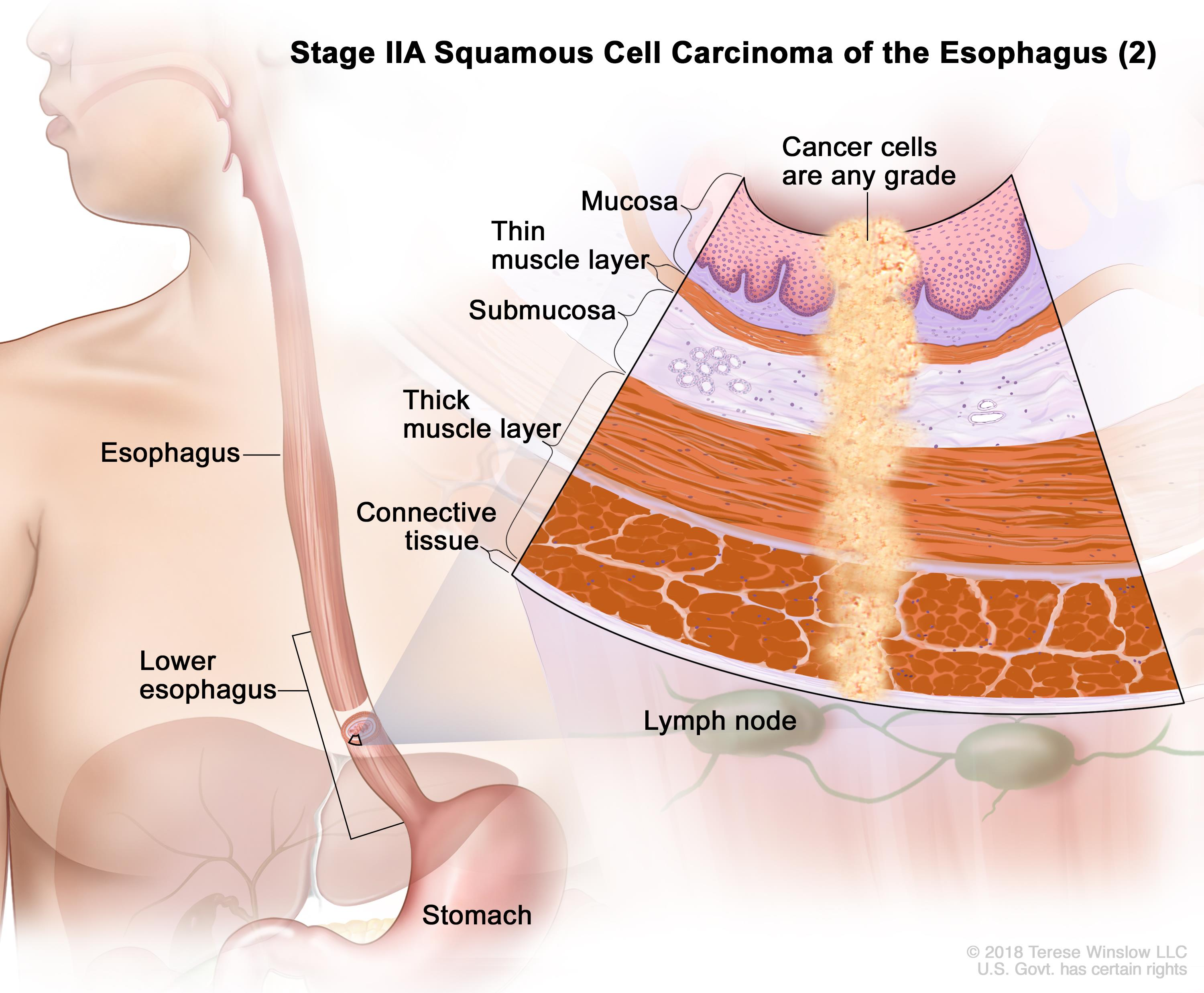 Thoracic Surgery - Esophageal Cancer