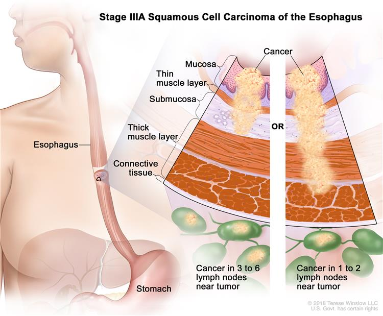 Stage IIIA squamous cell cancer of the esophagus (1); drawing shows the esophagus and stomach. A two-panel inset shows the layers of the esophagus wall: the mucosa, submucosa, muscle, and connective tissue layers. The left panel shows cancer in the mucosa and submucosa layers and in 3 lymph nodes. The right panel shows cancer in the mucosa, submucosa, muscle, and connective tissue layers and in 1 lymph node.