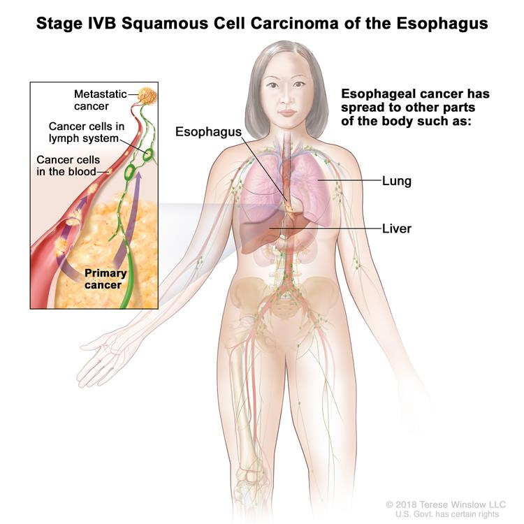 Stage IVB squamous cell carcinoma of the esophagus; drawing shows other parts of the body where esophagus cancer may spread, including the lung and liver. An inset shows cancer cells spreading from the esophagus, through the blood and lymph system, to another part of the body where metastatic cancer has formed.