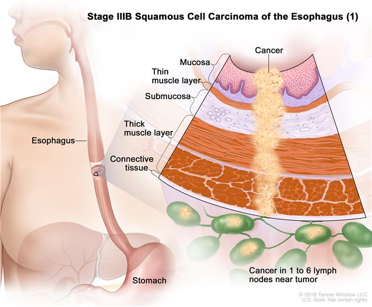 Stage IIIB squamous cell cancer of the esophagus; drawing shows the esophagus and stomach. An inset shows the layers of the esophagus wall with cancer in the mucosa, submucosa, muscle, and connective tissue layers. Also shown is cancer in 4 lymph nodes.
