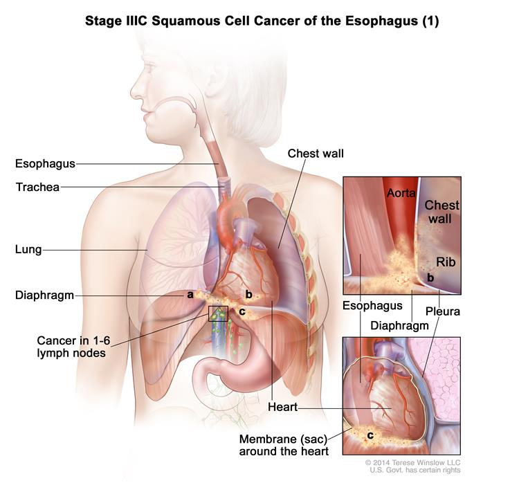Stage IIIC squamous cell cancer of the esophagus (1); drawing shows the esophagus, trachea, and lung. The top inset shows cancer that has spread from the esophagus into the diaphragm and pleura; the aorta, chest wall, and rib are also shown. The bottom inset shows cancer that has spread from the esophagus into the membrane (sac) around the heart. Also shown is cancer in  lymph nodes near the esophagus.