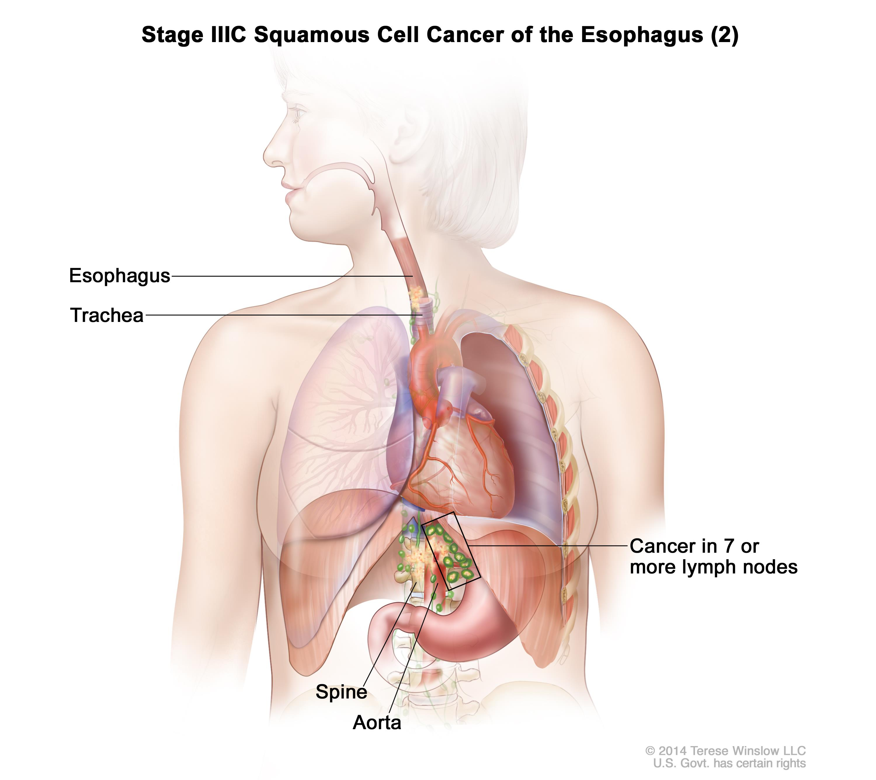 Stage IIIC squamous cell cancer of the esophagus (2); drawing shows cancer that has spread from the esophagus into the trachea, aorta, and spine. Also shown is cancer in lymph nodes near the esophagus.