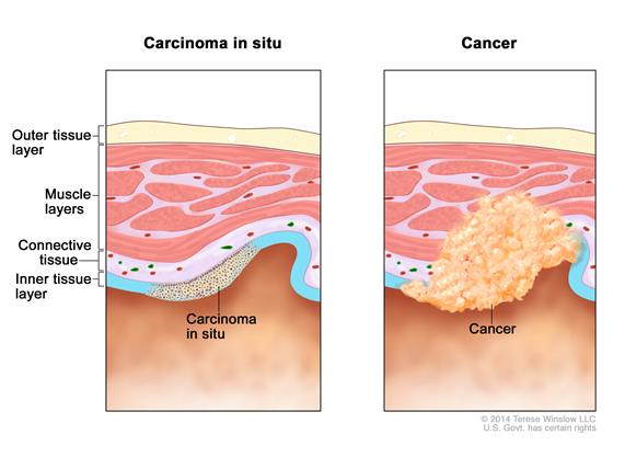 Two-panel drawing showing layers of tissue, including the outer tissue layer, muscle layers, connective tissue, and inner tissue layer. The left panel shows carcinoma in situ (abnormal cells) in the inner tissue layer. The right panel shows cancer cells spreading from the inner tissue layer to the connective tissue and muscle layers.