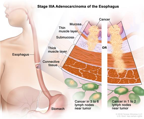 Stage IIIA adenocarcinoma of the esophagus; drawing shows the esophagus and stomach. A two-panel inset shows the layers of the esophagus wall: the mucosa layer, thin muscle layer, submucosa layer, thick muscle layer, and connective tissue layer. The left panel shows cancer in the mucosa layer, thin muscle layer, and submucosa layer and in 3 nearby lymph nodes. The right panel shows cancer in the mucosa layer, thin muscle layer, submucosa layer, and thick muscle layer and in 1 nearby lymph node.