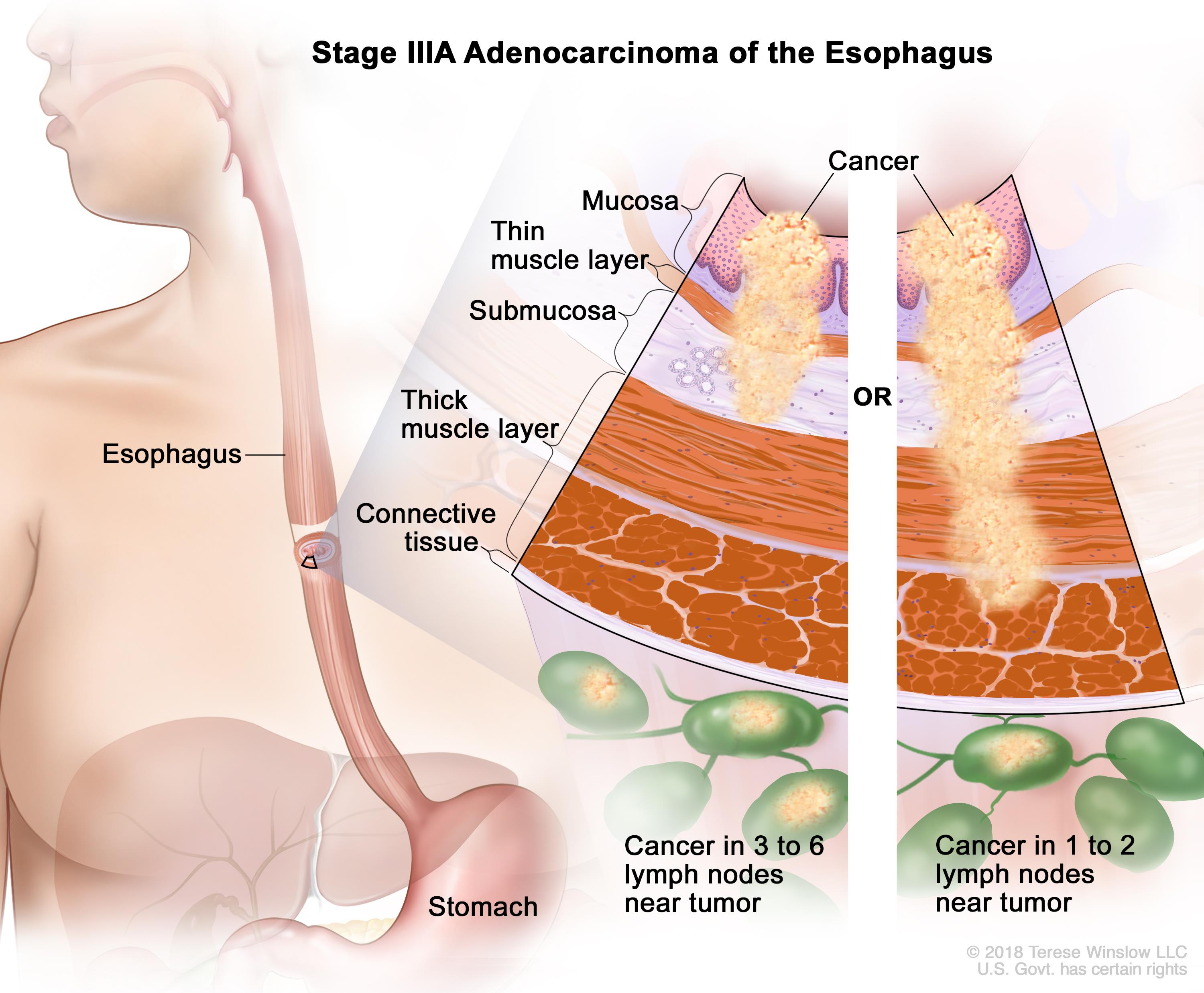 esophageal cancer vanderbilt ingram cancer center rh vicc org Esophageal Cancer Staging Esophageal Cancer Color