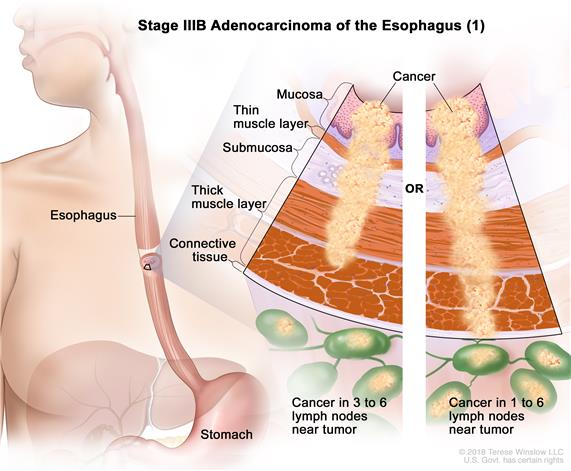 Stage IIIB adenocarcinoma of the esophagus; drawing shows the esophagus and stomach. An inset shows the layers of the esophagus wall with cancer in the mucosa, submucosa, muscle, and connective tissue layers. Also shown is cancer in 4 lymph nodes.