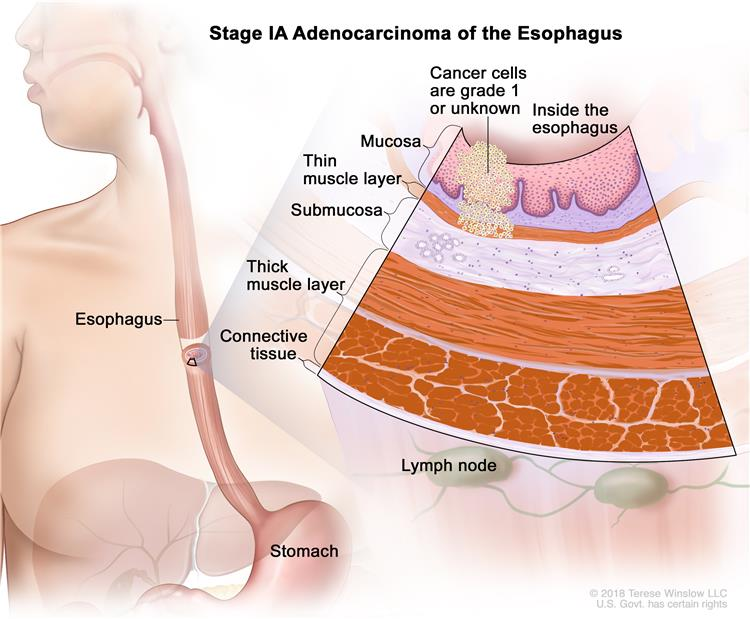 Stage IA adenocarcinoma of the esophagus; drawing shows the esophagus and stomach. An inset shows cancer cells in the mucosa layer and thin muscle layer of the esophagus wall. The cancer cells are grade 1 or the grade is not known.  Also shown are the submucosa layer, thick muscle layer, and connective tissue layer of the esophagus wall. The lymph nodes are also shown.