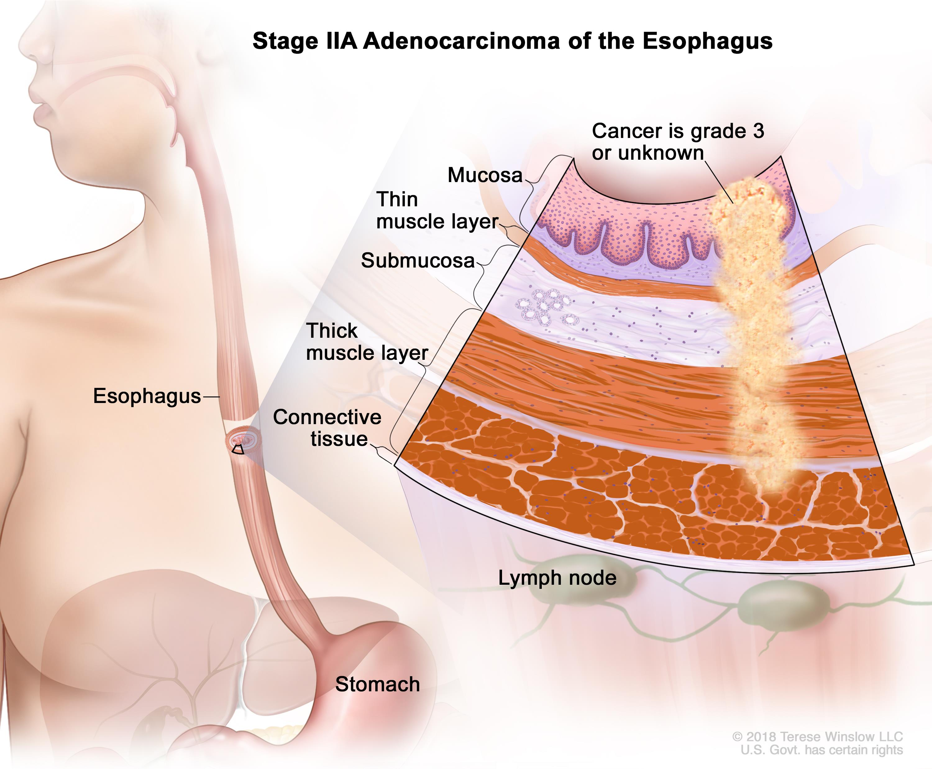 Stage IIA adenocarcinoma of the esophagus; drawing shows the esophagus and stomach. An inset shows cancer in the mucosa, submucosa, and muscle layers of the esophagus wall. Also shown is the connective tissue layer of the esophagus wall and lymph nodes.