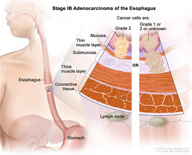 Stage IB adenocarcinoma of the esophagus; drawing shows the esophagus and stomach. A two-panel inset shows the layers of the esophagus wall: the mucosa, submucosa, muscle, and connective tissue layers. Also shown are lymph nodes. The left panel shows cancer in the mucosa and submucosa layers. The right panel shows cancer in the mucosa, submucosa, and muscle layers.
