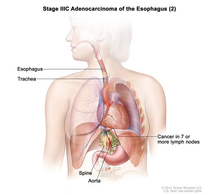 Definition Of Stage Iiic Esophageal Adenocarcinoma Nci Dictionary