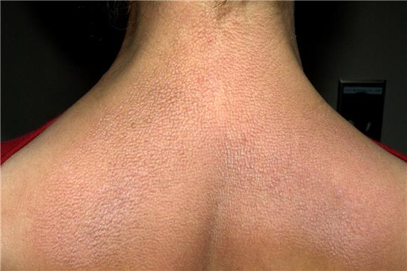 Photograph of the neck and upper back of an individual whose skin is covered with many small bumps that are brownish-red in color.