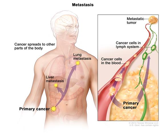 Metastasis; drawing shows primary cancer that has spread from the colon to other parts of the body (the liver and the lung). An inset shows cancer cells spreading from the primary cancer, through the blood and lymph system, to another part of the body where a metastatic tumor has formed.