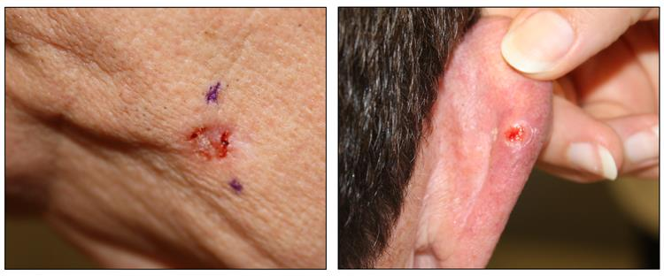Photographs showing a red, ulcerated lesion on the skin of the face (left panel) and a red, ulcerated lesion surrounded by a white border on the skin of the back of the right ear (right panel).