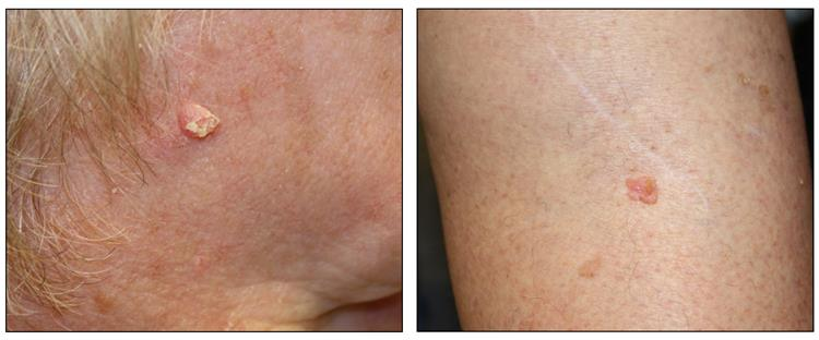 Photographs showing a pink, raised lesion on the skin of the face (left panel) and on the skin of the leg (right panel).