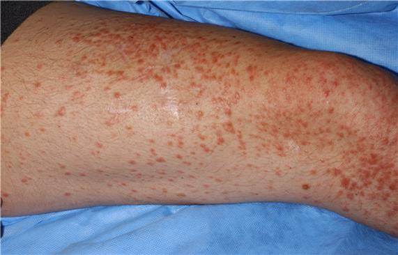 Photograph of many small, red papules on an individual's thigh.