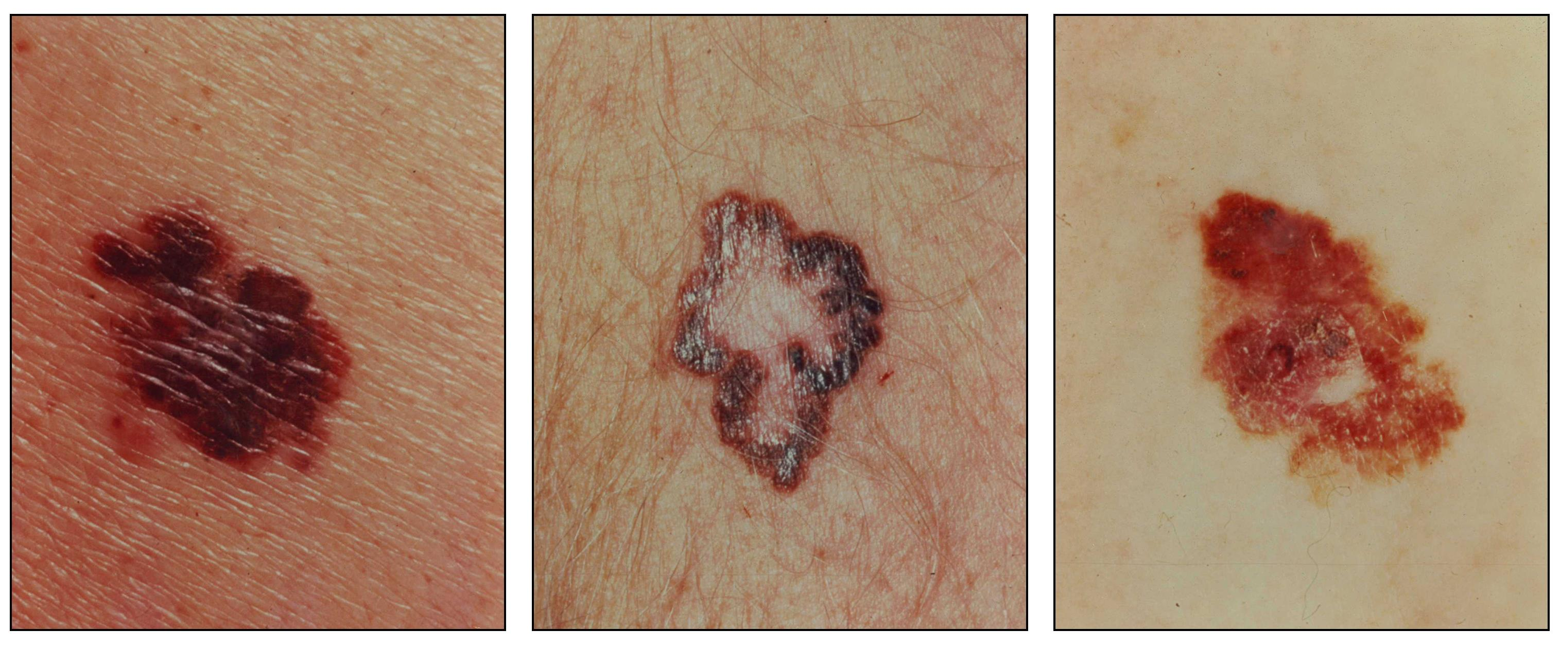 melanoma treatment (pdq®)—health professional version - national