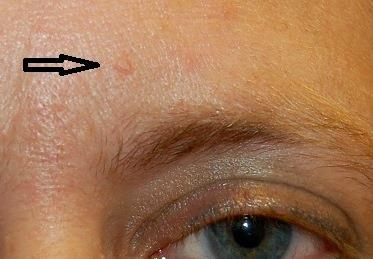 Photograph of a small, raised lesion on an individual's forehead.